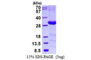 Image no. 1 for Complement Component 4 Binding Protein, beta (C4BPB) protein (His tag) (ABIN1098358)