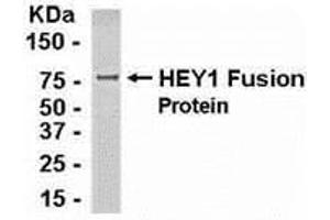 Image no. 1 for anti-Ha-Ry/enhancer-of-Split Related with YRPW Motif 1 (HEY1) (AA 1-230) antibody (ABIN2468189)