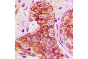 Immunohistochemistry (IHC) image for anti-GJA1 antibody (Gap Junction Protein, alpha 1, 43kDa) (C-Term) (ABIN2704672)