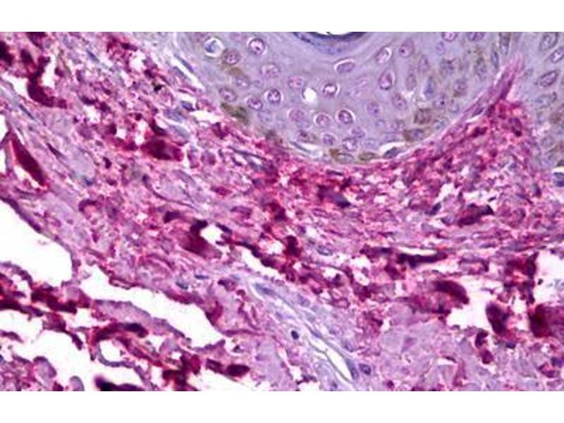 Immunohistochemistry (IHC) image for anti-Collagen, Type I (COL1) antibody (ABIN957814)