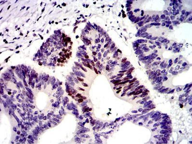 Immunohistochemistry (IHC) image for anti-MutS Homolog 6 (E. Coli) (MSH6) antibody (ABIN969293)
