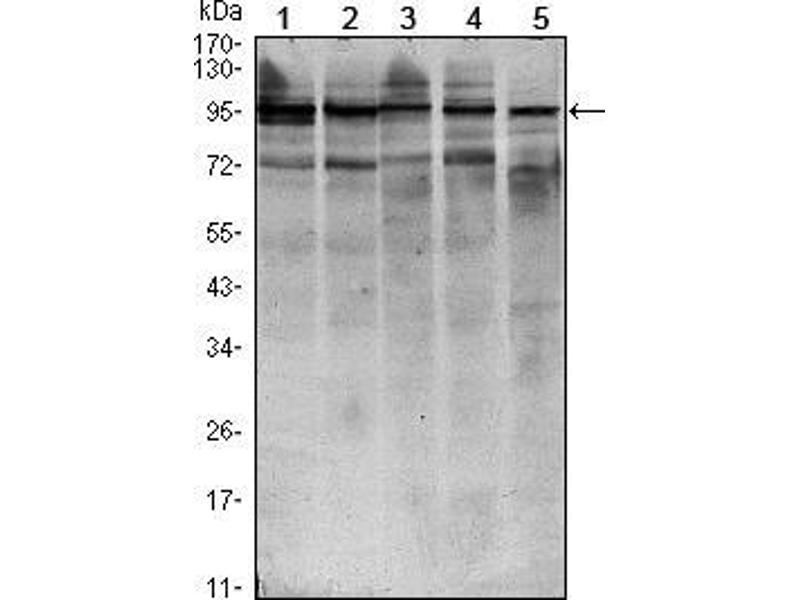 Western Blotting (WB) image for anti-STAT6 antibody (Signal Transducer and Activator of Transcription 6, Interleukin-4 Induced) (ABIN969423)