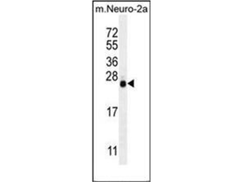 Western Blotting (WB) image for anti-Lin-28 Homolog A (C. Elegans) (LIN28A) antibody (ABIN953173)