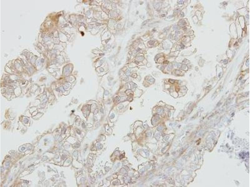 Immunohistochemistry (Paraffin-embedded Sections) (IHC (p)) image for anti-Discoidin Domain Receptor tyrosine Kinase 1 (DDR1) (Center) antibody (ABIN443076)