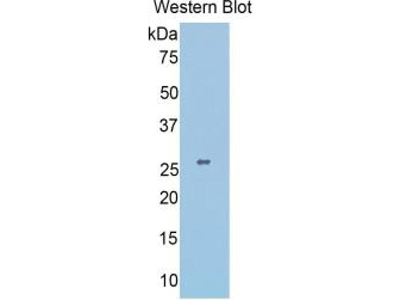 Slit Homolog 1 (Drosophila) (SLIT1) ELISA Kit (3)