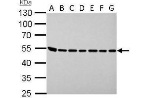 Western Blotting (WB) image for anti-Argininosuccinate Lyase (ASL) (Center) antibody (ABIN2856924)