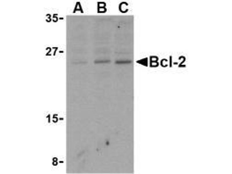 Western Blotting (WB) image for anti-BCL2 antibody (B-Cell CLL/lymphoma 2) (N-Term) (ABIN499427)