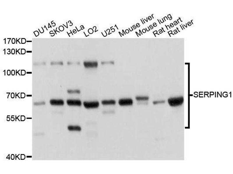 Western Blotting (WB) image for anti-Serpin Peptidase Inhibitor, Clade G (C1 Inhibitor), Member 1 (SERPING1) antibody (ABIN3022430)