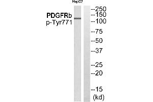 Image no. 1 for anti-Epidermal Growth Factor Receptor Pathway Substrate 15 (EPS15) (pTyr849) antibody (ABIN1576331)