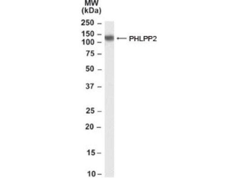 Western Blotting (WB) image for anti-PHLPP2 Antikörper (PH Domain and Leucine Rich Repeat Protein Phosphatase 2) (C-Term) (ABIN253307)