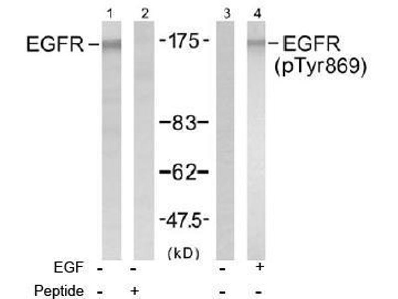 Image no. 2 for anti-EGFR antibody (Epidermal Growth Factor Receptor) (Tyr869) (ABIN197464)