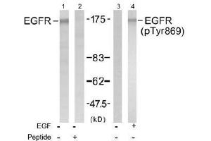 image for anti-EGFR antibody (Epidermal Growth Factor Receptor) (Tyr869) (ABIN197465)