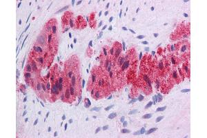 Image no. 7 for anti-Kruppel-Like Factor 2 (Lung) (KLF2) (Middle Region) antibody (ABIN2777573)