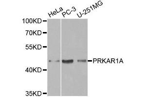 Image no. 1 for anti-Protein Kinase, CAMP-Dependent, Regulatory, Type I, alpha (Tissue Specific Extinguisher 1) (PRKAR1A) antibody (ABIN3021148)