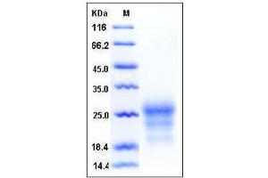 Image no. 1 for CD90 (THY1) (AA 1-131), (Extracellular Domain) protein (His tag) (ABIN2007827)