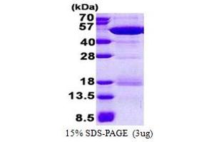Image no. 1 for NCK Adaptor Protein 2 (NCK2) (AA 1-380) protein (His tag) (ABIN5853122)