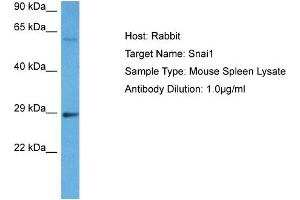 Image no. 6 for anti-Snail Homolog 1 (Drosophila) (SNAI1) (N-Term) antibody (ABIN2777858)