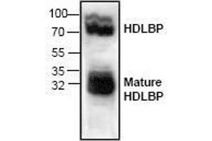 Image no. 1 for anti-High Density Lipoprotein Binding Protein (HDLBP) antibody (ABIN411499)