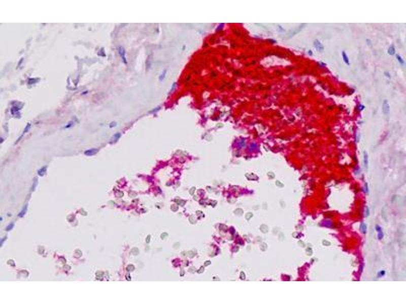 Immunohistochemistry (IHC) image for anti-Complement Component 4B (C4B) antibody (ABIN1804101)
