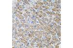 Immunohistochemistry (IHC) image for anti-PIK3CG antibody (Phosphoinositide-3-Kinase, Catalytic, gamma Polypeptide) (ABIN1874133)