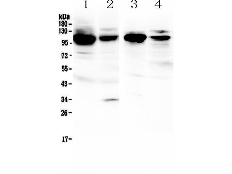 Western Blotting (WB) image for anti-Vascular Cell Adhesion Molecule 1 (VCAM1) (AA 25-270) antibody (ABIN5519072)