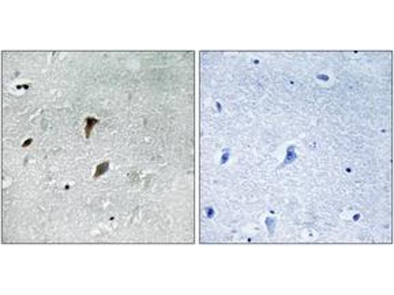 Immunohistochemistry (IHC) image for anti-MAP2K3 antibody (Mitogen-Activated Protein Kinase Kinase 3) (pThr222) (ABIN1532059)