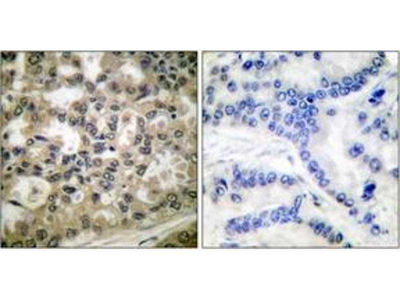 Immunohistochemistry (IHC) image for anti-NFKBIB antibody (Nuclear Factor of kappa Light Polypeptide Gene Enhancer in B-Cells Inhibitor, beta) (pSer23) (ABIN1531183)