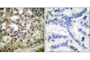 Immunohistochemistry (IHC) image for anti-Nuclear Factor of kappa Light Polypeptide Gene Enhancer in B-Cells Inhibitor, beta (NFKBIB) (pSer23) antibody (ABIN1531183)