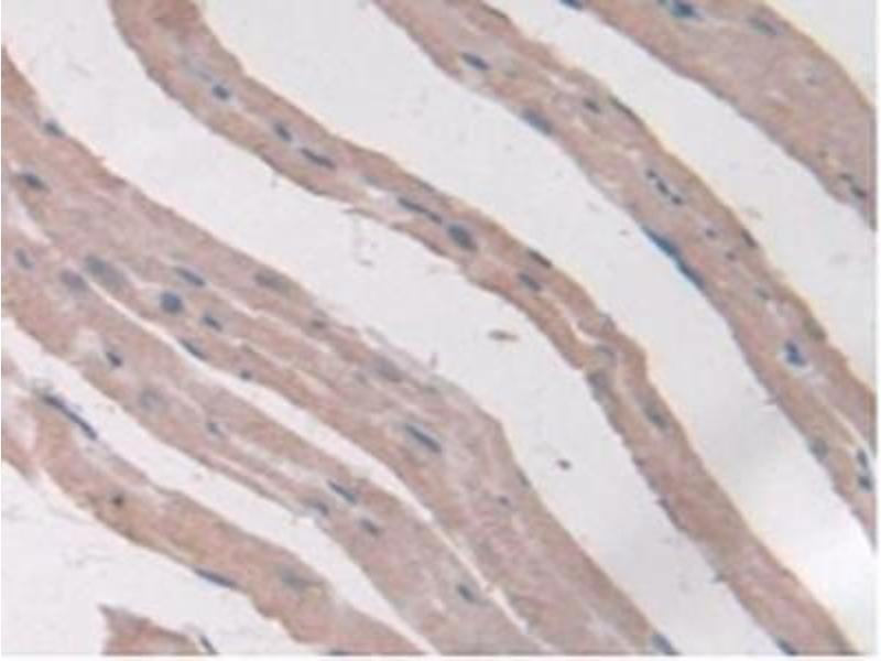 Immunohistochemistry (IHC) image for anti-Adiponectin Receptor 2 (ADIPOR2) (AA 1-147) antibody (ABIN1866553)