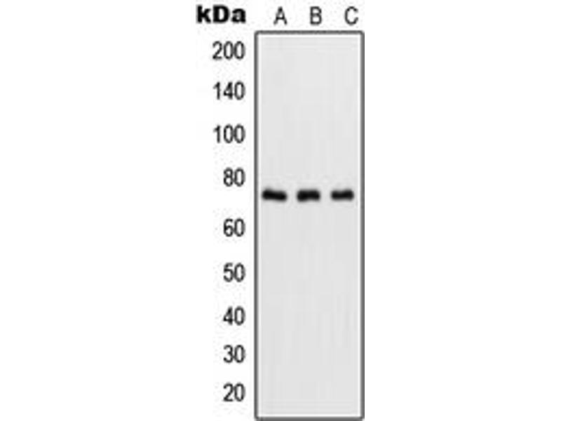 Western Blotting (WB) image for anti-Nuclear Factor-KB P65 (NFkBP65) (C-Term), (pSer536) antibody (ABIN2705045)