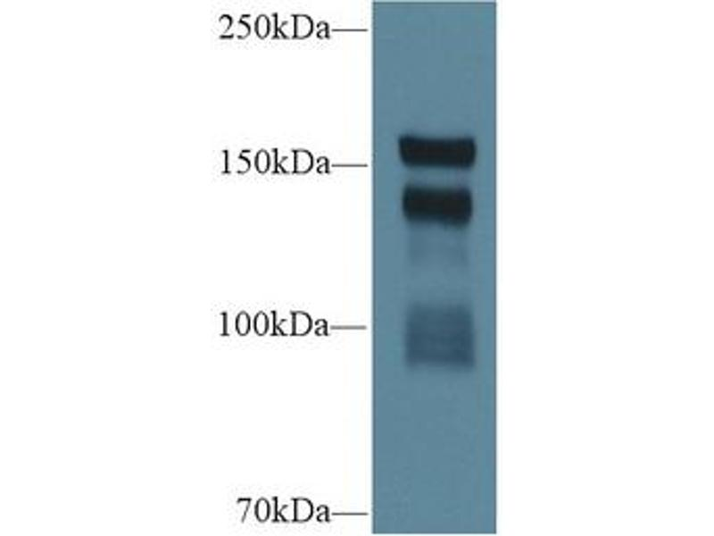 Thrombospondin 1 (THBS1) ELISA Kit (3)
