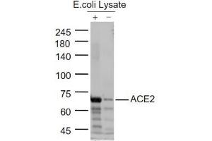 Image no. 1 for anti-Angiotensin I Converting Enzyme 2 (ACE2) antibody (ABIN6952452)