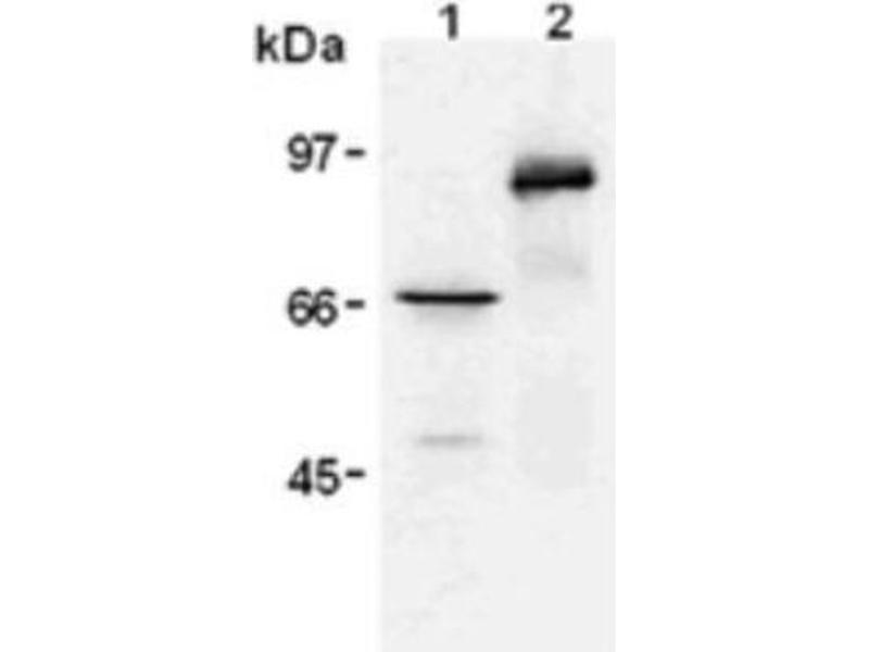 Western Blotting (WB) image for anti-V-Myc Myelocytomatosis Viral Oncogene Homolog (Avian) (MYC) antibody (ABIN4957393)