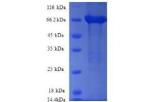 Image no. 1 for rho/rac Guanine Nucleotide Exchange Factor (GEF) 18 (ARHGEF18) (AA 159-551), (partial) protein (GST tag) (ABIN1608075)