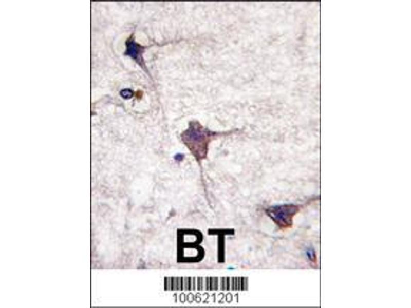 Immunohistochemistry (IHC) image for anti-Protein tyrosine Phosphatase, Receptor Type, R (PTPRR) (AA 234-265), (N-Term) antibody (ABIN392828)