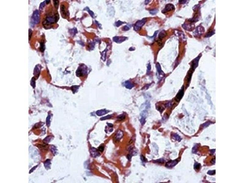Immunohistochemistry (IHC) image for anti-Fms-Related tyrosine Kinase 1 (Vascular Endothelial Growth Factor/vascular Permeability Factor Receptor) (FLT1) antibody (ABIN152108)