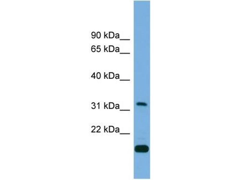 Western Blotting (WB) image for anti-CTD (Carboxy-terminal Domain, RNA Polymerase II, Polypeptide A) Small Phosphatase 2 (CTDSP2) (Middle Region) antibody (ABIN2774003)