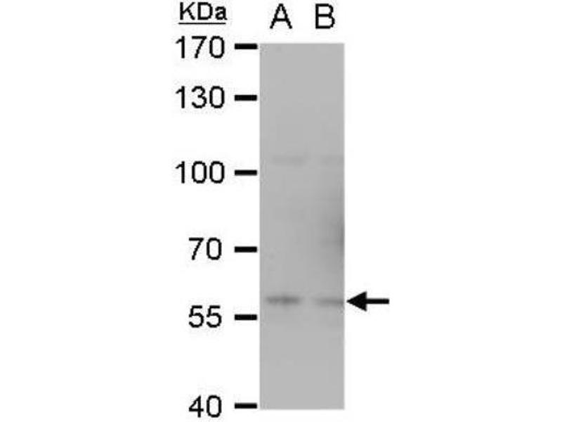 Western Blotting (WB) image for anti-TRAF6 antibody (TNF Receptor-Associated Factor 6) (Center) (ABIN443234)