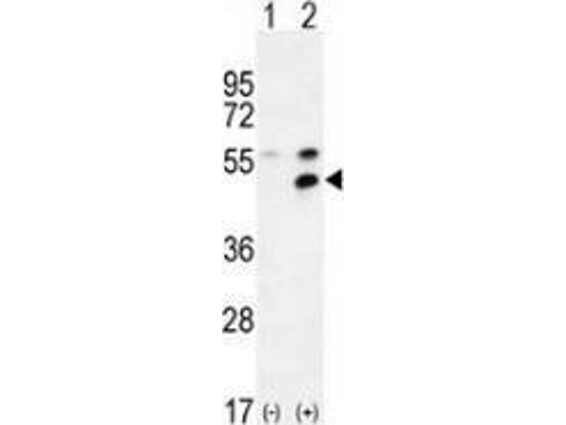 Western Blotting (WB) image for anti-Membrane Protein, Palmitoylated 1, 55kDa (MPP1) (AA 304-331), (Middle Region) antibody (ABIN953491)