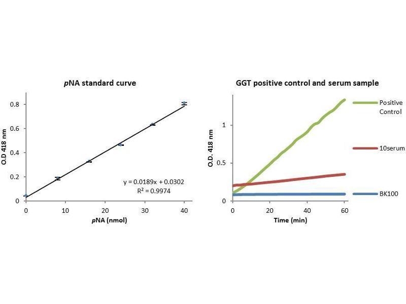 gamma glutamyl transferase ggt activity colorimetric assay kit abin1304380. Black Bedroom Furniture Sets. Home Design Ideas