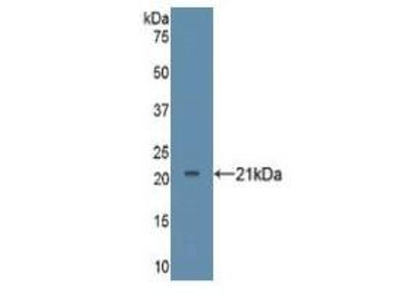 Tumor Necrosis Factor (TNF) ELISA Kit (3)