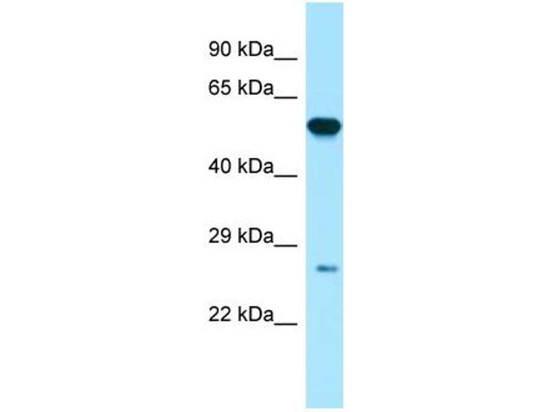 Western Blotting (WB) image for anti-Glutathione S-Transferase pi 1 (GSTP1) (N-Term) antibody (ABIN2783391)