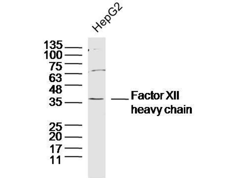 Western Blotting (WB) image for anti-Coagulation Factor XII (Hageman Factor) (F12) antibody (ABIN1387090)