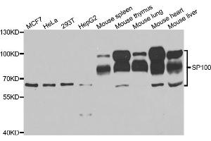 Image no. 1 for anti-SP100 Nuclear Antigen (SP100) antibody (ABIN6570157)