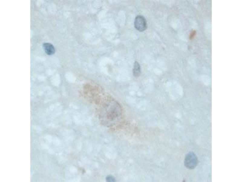 Immunohistochemistry (IHC) image for anti-Neurotrophic tyrosine Kinase, Receptor, Type 3 (NTRK3) (Extracellular Domain) antibody (ABIN351086)