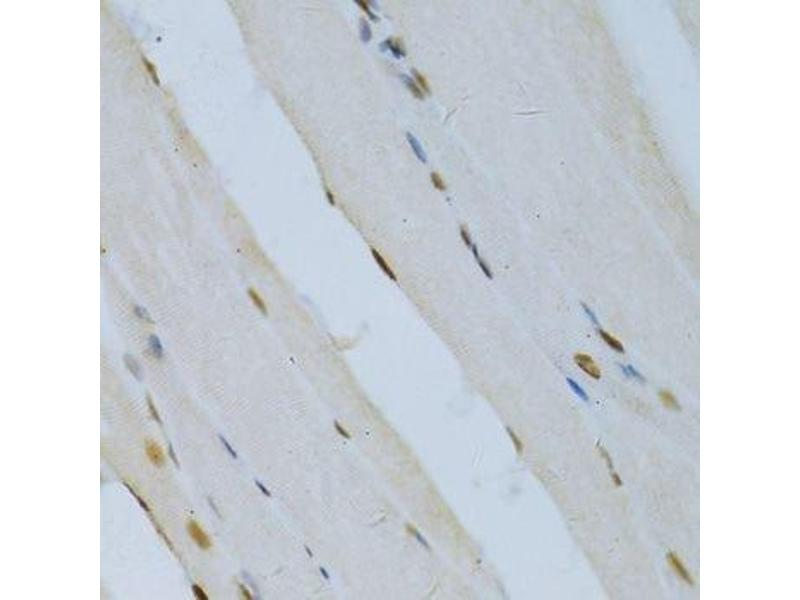 Immunohistochemistry (Paraffin-embedded Sections) (IHC (p)) image for anti-Mitogen-Activated Protein Kinase 3 (MAPK3) (N-Term) antibody (ABIN3020725)