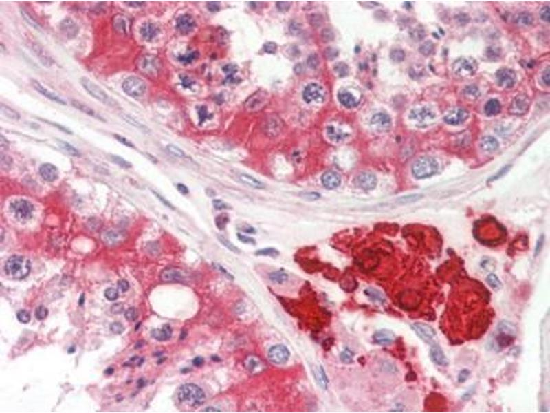 Immunohistochemistry (Paraffin-embedded Sections) (IHC (p)) image for anti-MAP3K1 antibody (Mitogen-Activated Protein Kinase Kinase Kinase 1) (ABIN615074)