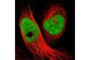 Image no. 1 for anti-Smith-Magenis Syndrome Chromosome Region, Candidate 8 (SMCR8) antibody (ABIN5588427)