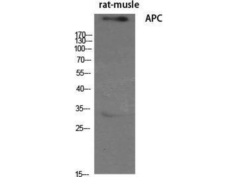 Western Blotting (WB) image for anti-Adenomatous Polyposis Coli (APC) (C-Term) antibody (ABIN3183309)