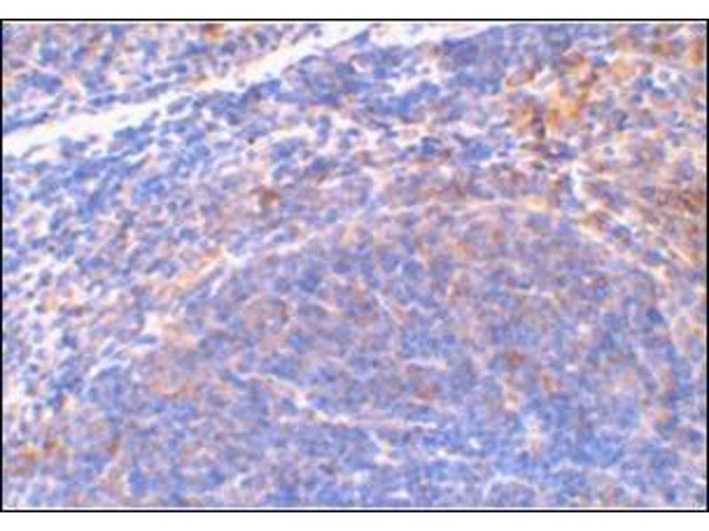 Immunohistochemistry (Paraffin-embedded Sections) (IHC (p)) image for anti-DIABLO antibody (Second Mitochondria-Derived Activator of Caspase) (AA 222-237) (ABIN500784)
